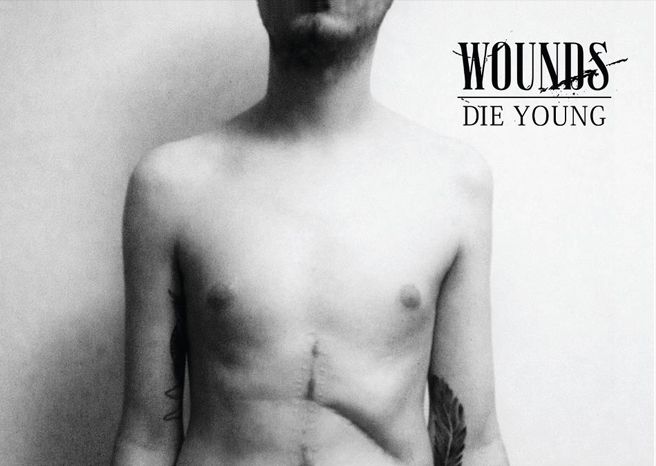 Wounds 'Die Young' Album Review